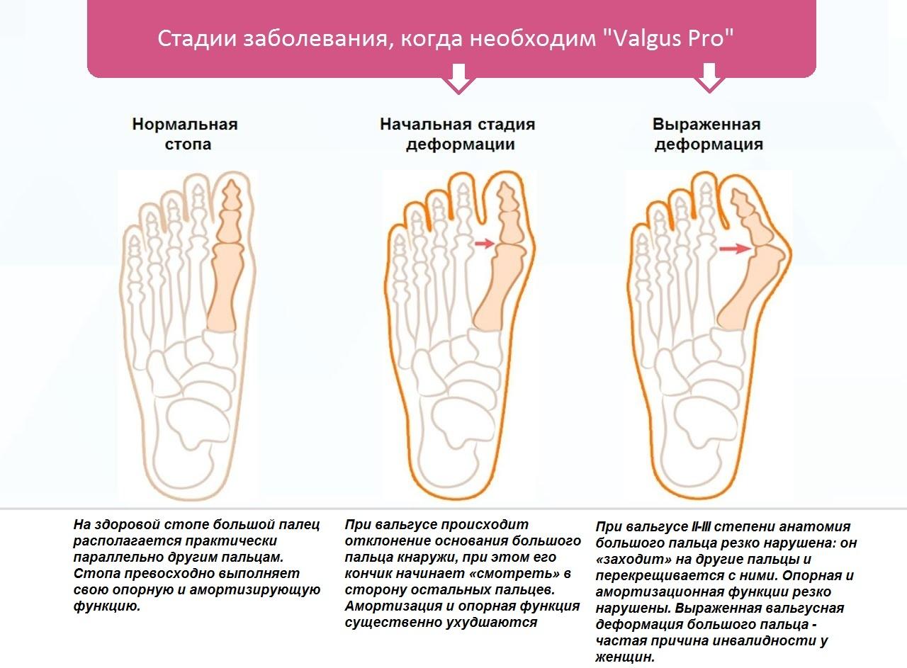 Боль в правом паху у женщин отдает в ногу